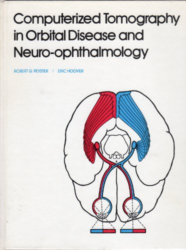 9780815166726: Computerized tomography in orbital disease and neuroophthalmology