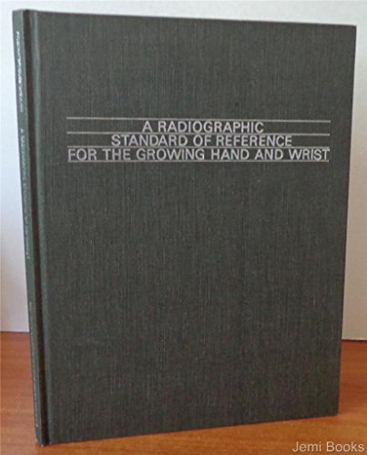 9780815168942: Radiographic Standard of Reference for the Growing Hand and Wrist