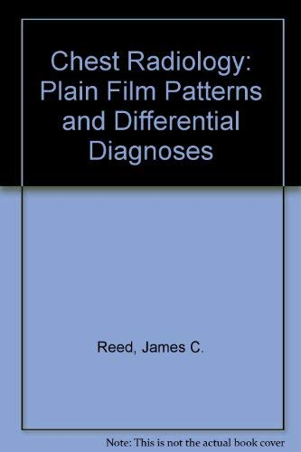 9780815171249: Chest Radiology: Plain Film Patterns and Differential Diagnoses