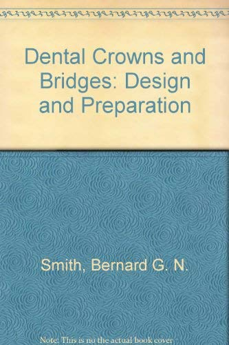 9780815178071: Dental Crowns and Bridges: Design and Preparation