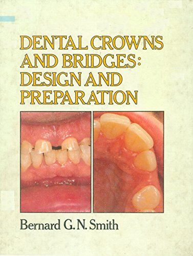 9780815178255: Dental crowns and bridges: Design and preparation