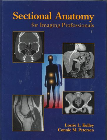 9780815186656: Sectional Anatomy for Imaging Professionals, 1e
