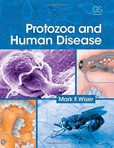 9780815365006: Protozoa and Human Disease