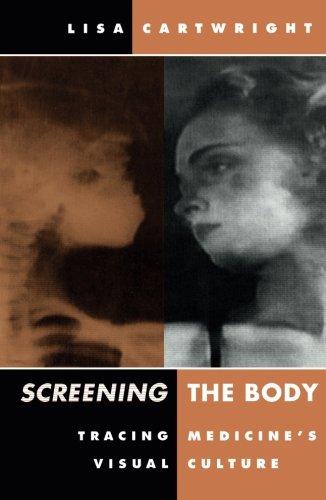 9780816622900: Screening The Body: Tracing Medicine's Visual Culture