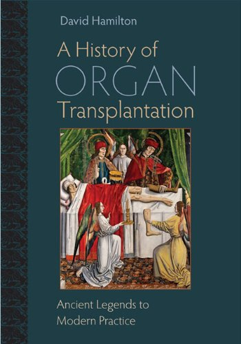 9780822944133: A History of Organ Transplantation: Ancient Legends to Modern Practice
