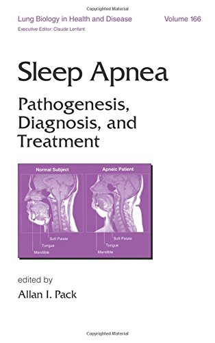 9780824703127: Sleep Apnea: Pathogenesis, Diagnosis and Treatment (Lung Biology in Health and Disease)
