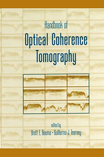 9780824705589: Handbook of Optical Coherence Tomography