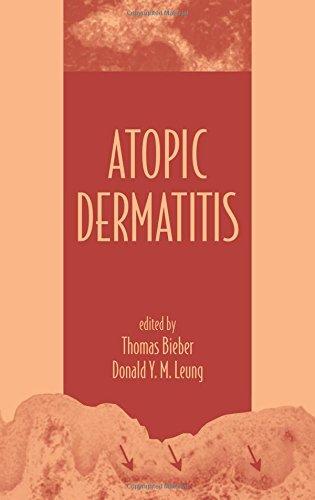 9780824707422: Atopic Dermatitis