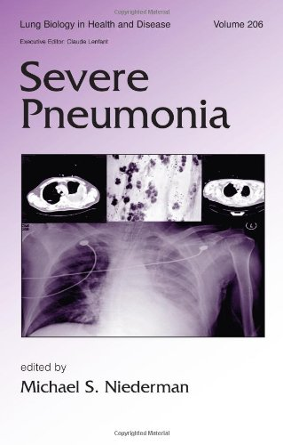 9780824726270: Severe Pneumonia (Lung Biology in Health and Disease)