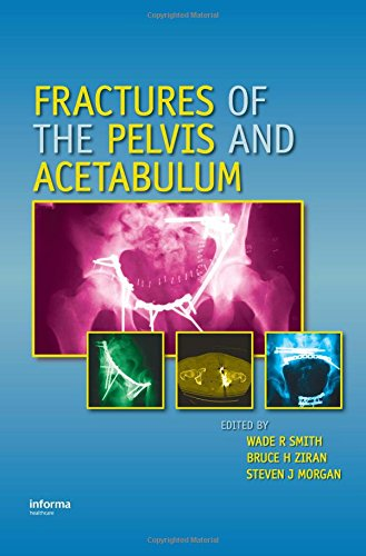 Fractures of the Pelvis and Acetabulum: Smith, Wade R./ Ziran, Bruce H./ Morgan, Steven J