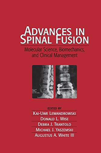 9780824743109: Advances in Spinal Fusion: Molecular Science, BioMechanics, and Clinical Management