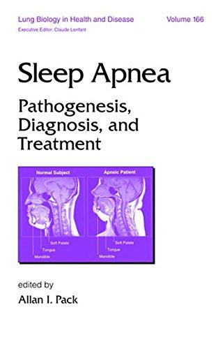 9780824744816: Sleep Apnea (Apnia) (MEDICINE, SLEEP DISORDERS, RESPIRATORY DISORDERS)