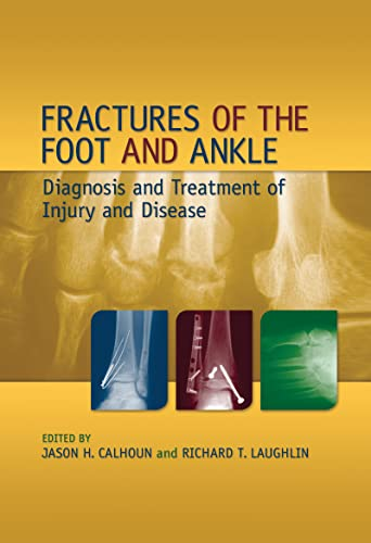 9780824759162: Fractures of the Foot and Ankle: Diagnosis and Treatment of Injury and Disease