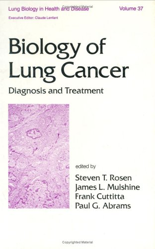 9780824776428: Biology of Lung Cancer: Diagnosis and Treatment