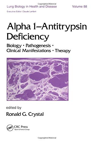 9780824788483: Alpha 1 - Antitrypsin Deficiency: Biology-Pathogenesis-Clinical Manifestations-Therapy (Lung Biology in Health and Disease)