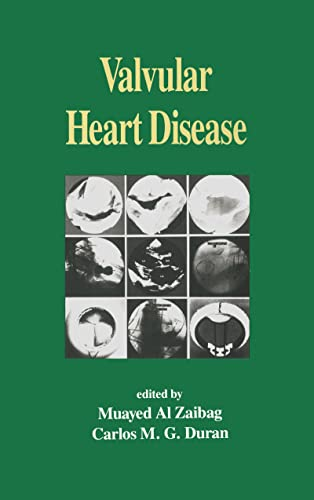 9780824788612: Valvular Heart Disease (Fundamental and Clinical Cardiology)
