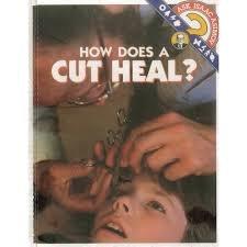 9780836808056: How Does a Cut Heal? (Ask Isaac Asimov)