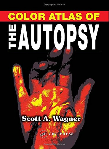 9780849315206: Color Atlas of the Autopsy