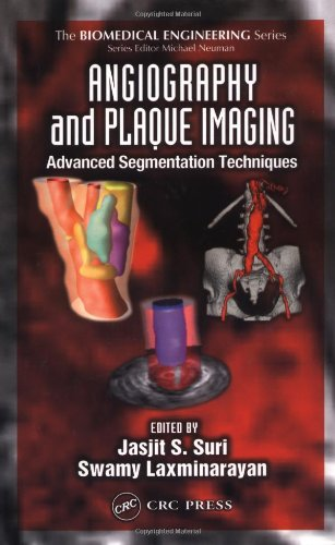 Angiography and Plaque Imaging: Advanced Segmentation Techniques: Jasjit S. Suri,