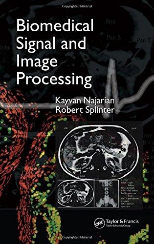 9780849320996: Biomedical Signal and Image Processing
