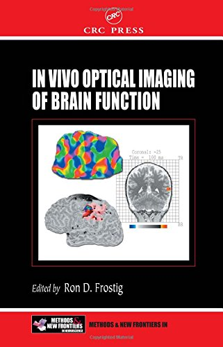 In Vivo Optical Imaging of Brain Function (Frontiers in Neuroscience): Frostig, Ron (ed)