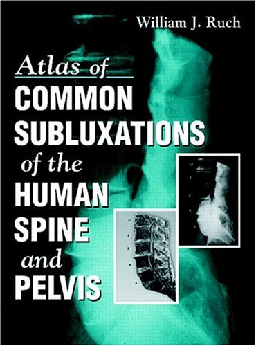 9780849331176: Atlas of Common Subluxations of the Human Spine and Pelvis