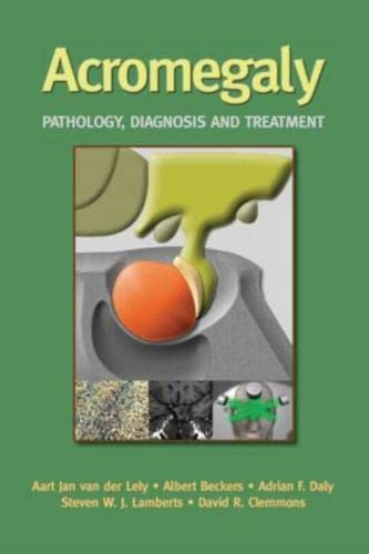 Acromegaly - Pathology, Diagnosis and Treatment: Aart Jan Van