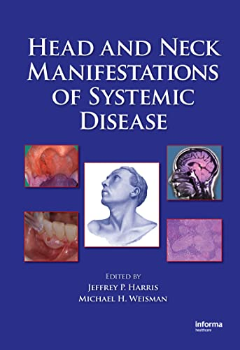 Head and Neck Manifestations of Systemic Disease: Harris, Jeffrey P.