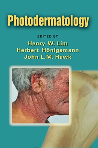 9780849374968: Photodermatology (Basic and Clinical Dermatology)