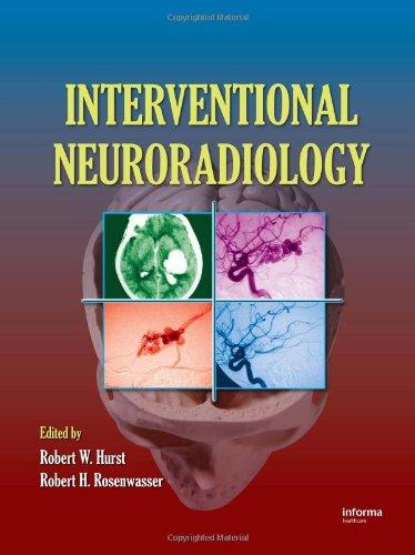 9780849395628: Interventional Neuroradiology