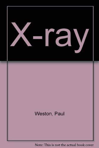 9780851116556: X-ray