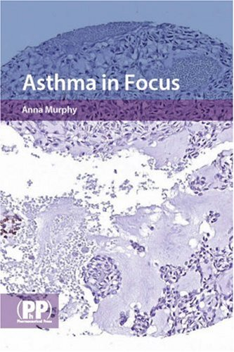 9780853696476: Asthma in Focus