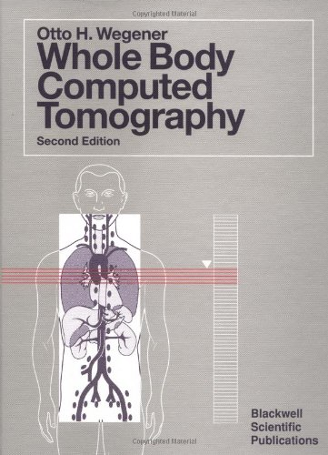 9780865422230: Whole Body Computed Tomography