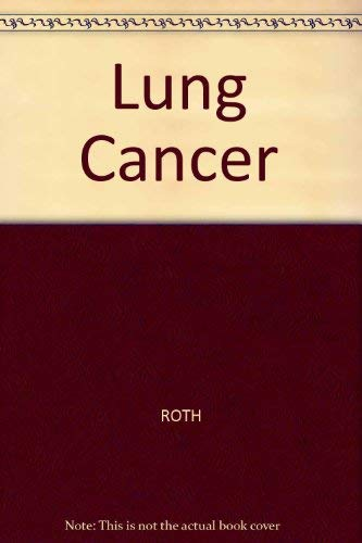 9780865422827: Lung Cancer