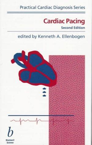 Ellenbogen Cardiac Pacing Book