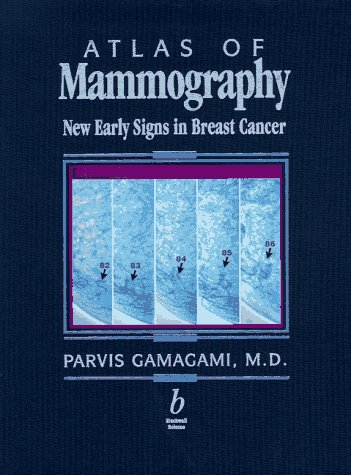 9780865424814: Atlas of Mammography