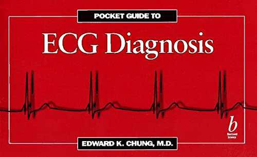 Pocketguide to ECG Diagnosis: Chung, Edward
