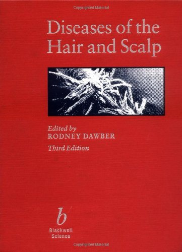 9780865428669: Diseases of the Hair and Scalp