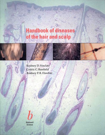 9780865429284: Handbook of Disease of the Hair and Scalp