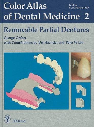 9780865772762: Removable Partial Dentures (Color Atlas of Dental Medicine)
