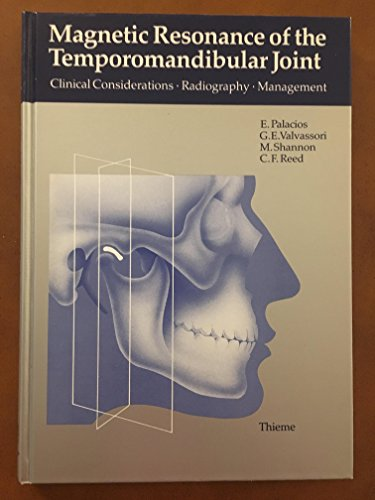 9780865773639: Magnetic Resonance of the Temporomandibular Joint Considerations
