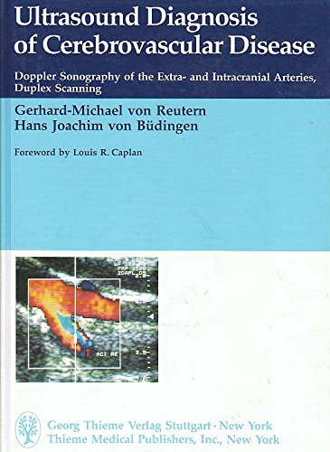 9780865774575: Ultrasound Diagnosis of Cerebrovascular Disease: Doppler Sonography of the Extra- And Intracranial Arteries Duplex Scanning