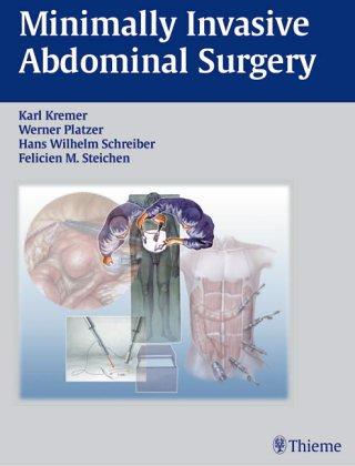 9780865776395: Minimally Invasive Abdominal Surgery (Atlas of ...