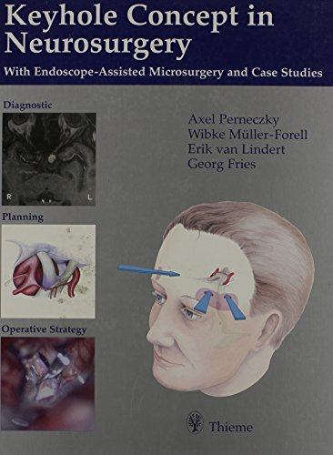 9780865777095: Keyhole Concept in Neurosurgery: With Endoscope-Assisted Microsurgery and Case Studies