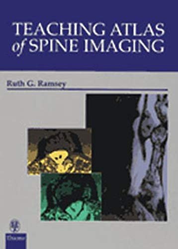 9780865777781: Teaching Atlas of Spine Imaging (Teaching Atlas Series)