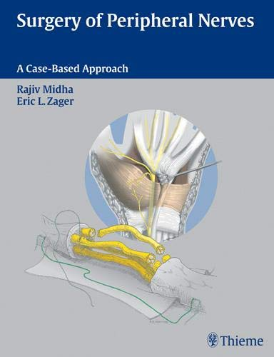 9780865778603: Surgery of Peripheral Nerves: A Case-Based Approach