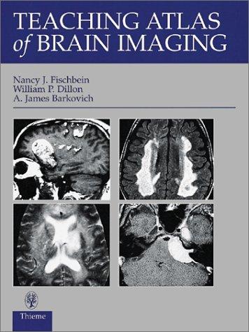 Teaching Atlas of Brain Imaging [Englisch] [Gebundene Ausgabe] William P. Dillon (Autor), James A. ...