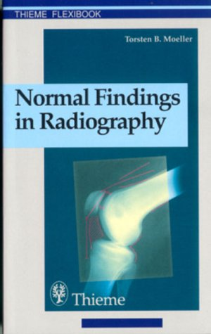 9780865778719: Normal Findings in Radiography