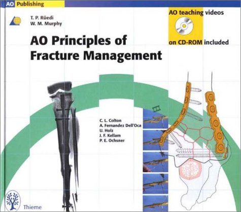 9780865778863: Ao Principles of Fracture Management