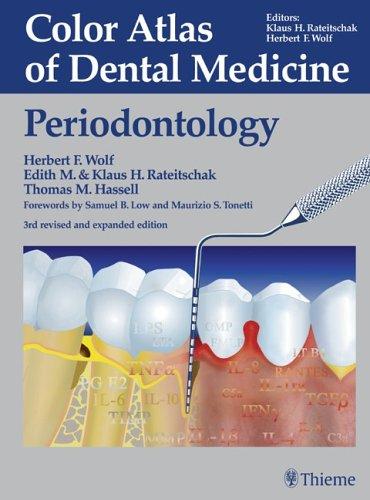 9780865779020: Color Atlas of Dental Medicine: Periodontology